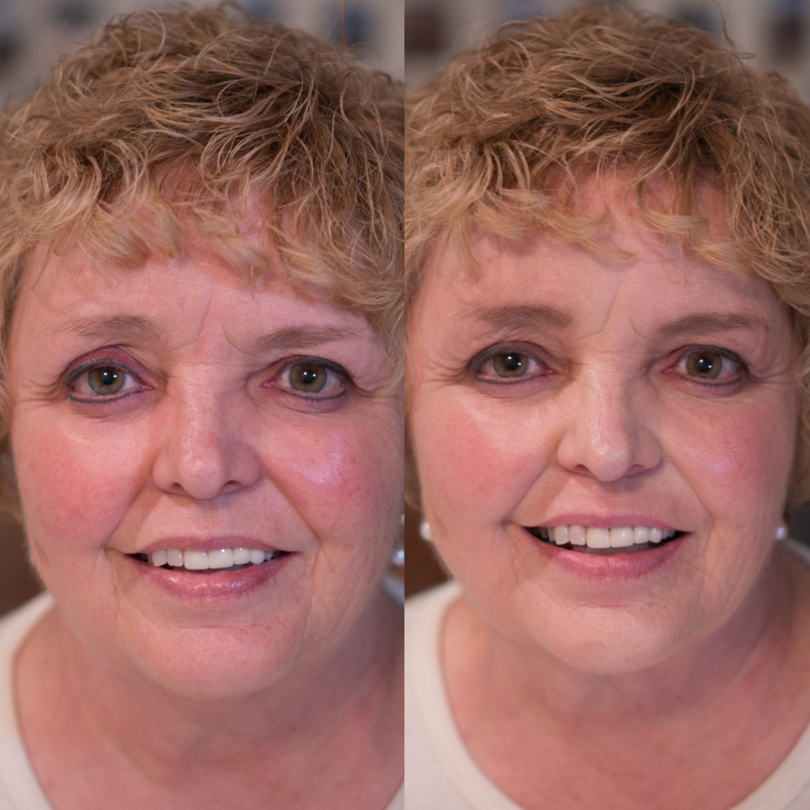 Lovely Before & After using Maskcara Makeup at www.maskcarabeautygirl.com